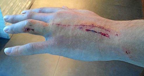 Imagen de la mano de Krychowiak con las heridas tras el pisotón.