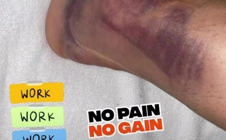 El increíble estado del tobillo de Ceballos 24 horas después de su lesión.